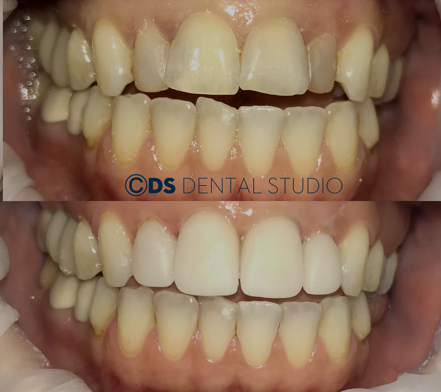 Before after porcelain crowns