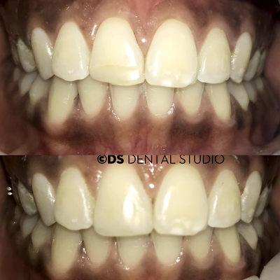 Cosmetic bonding composite veneer